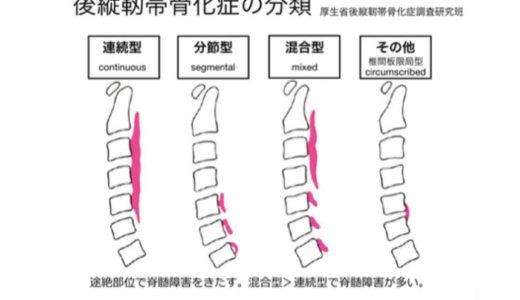 関節外科医的、後縦靱帯骨化症(OPLL)の知識アップデート
