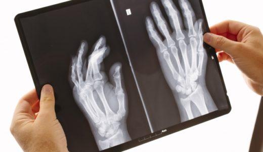 【重要】骨折の診断は専門医でも難しい!